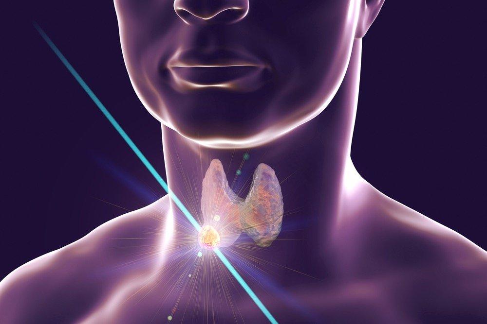 Tumore della tiroide laser o radiofrequenza