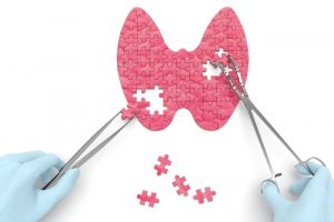 Chirurgia del tumore della tiroide