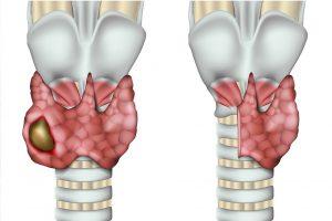 Loboistmectomia tiroide