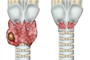 Tiroidectomia tumore