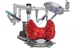 Tumore della tiroide chirurgia mini invasiva
