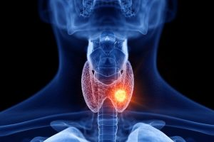 Tumori della tiroide
